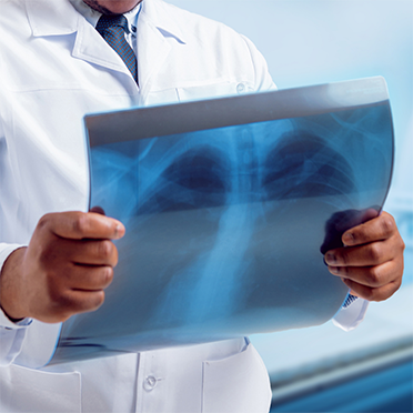 Financial assistance available for early lung cancer screening